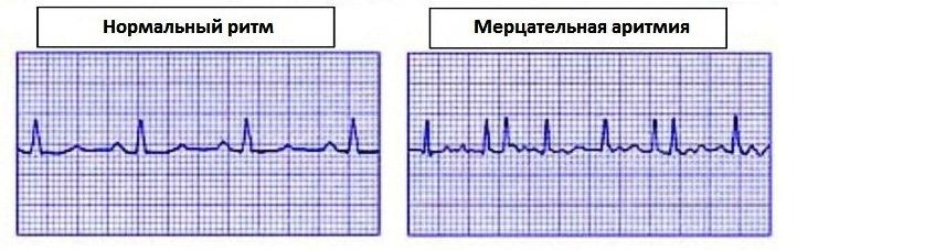 Сердечные аритмии
