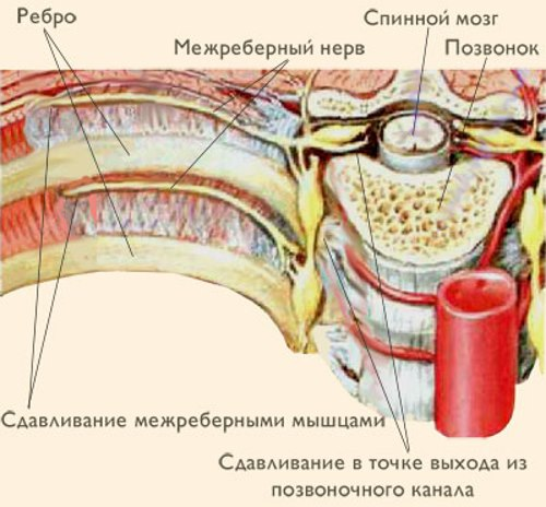 mezhrebernaja-nevrolgija