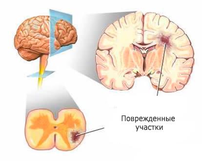 mozg-rasseyanniy-skleroz