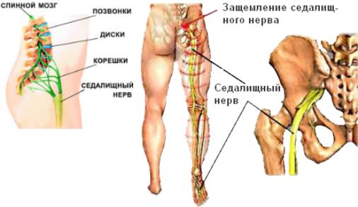 Защемление седалищного нерва: симптомы и лечение в домашних ...