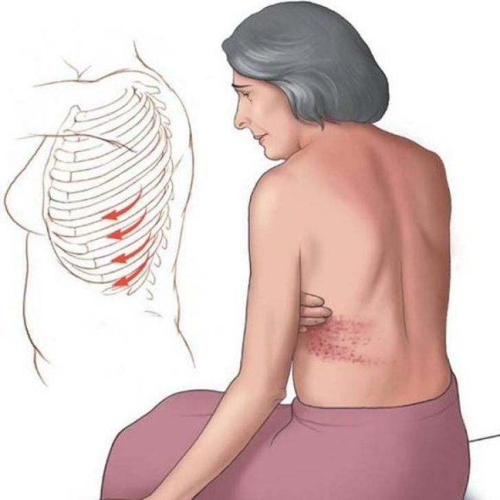 У беременной болят ребра сверху 90