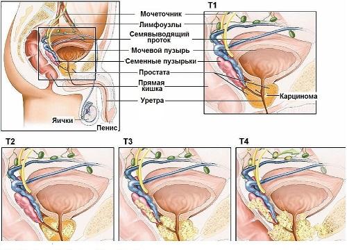 prostatastad