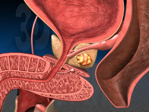 Рак простаты: симптомы, методы лечения, прогноз