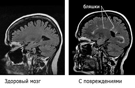 rasseyanniy-skleroz-diagnostika