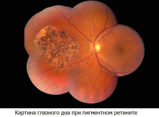 retinti-glaza