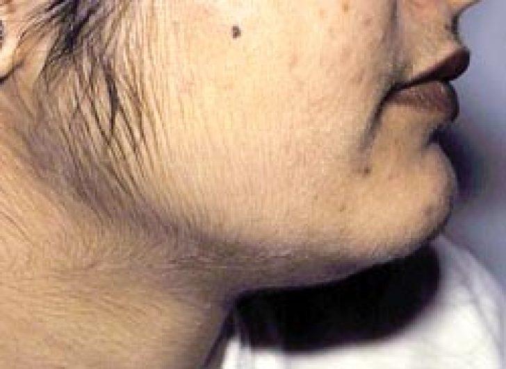 фото лобковых волос у девушек