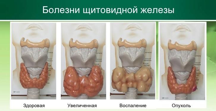 Опухоли и кисты щитовидной железы при беременности