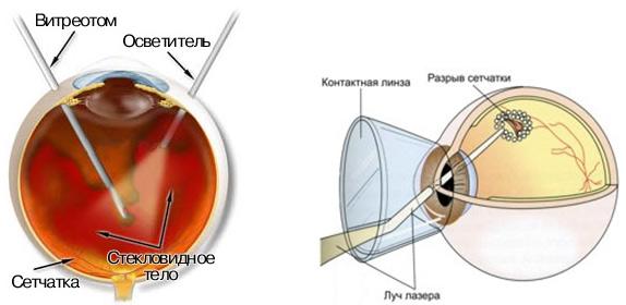 Эндовитреальные хирургические методы