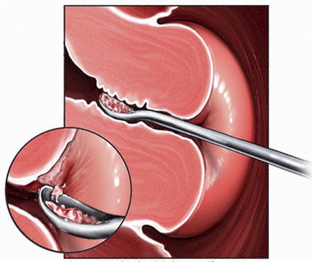 Диагностическое выскабливание и лапароскопия