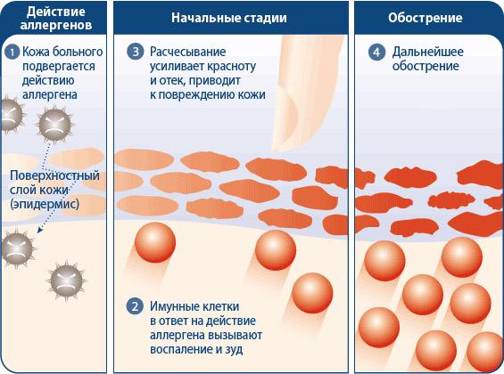 Пероральный дерматит лечение, причины и симптомы