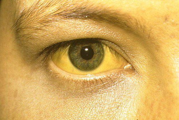 Желтый цвет кожных покровов и слизистых оболочек