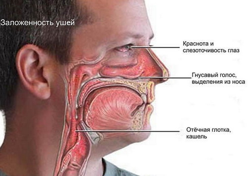 Симптомы аллергического насморка