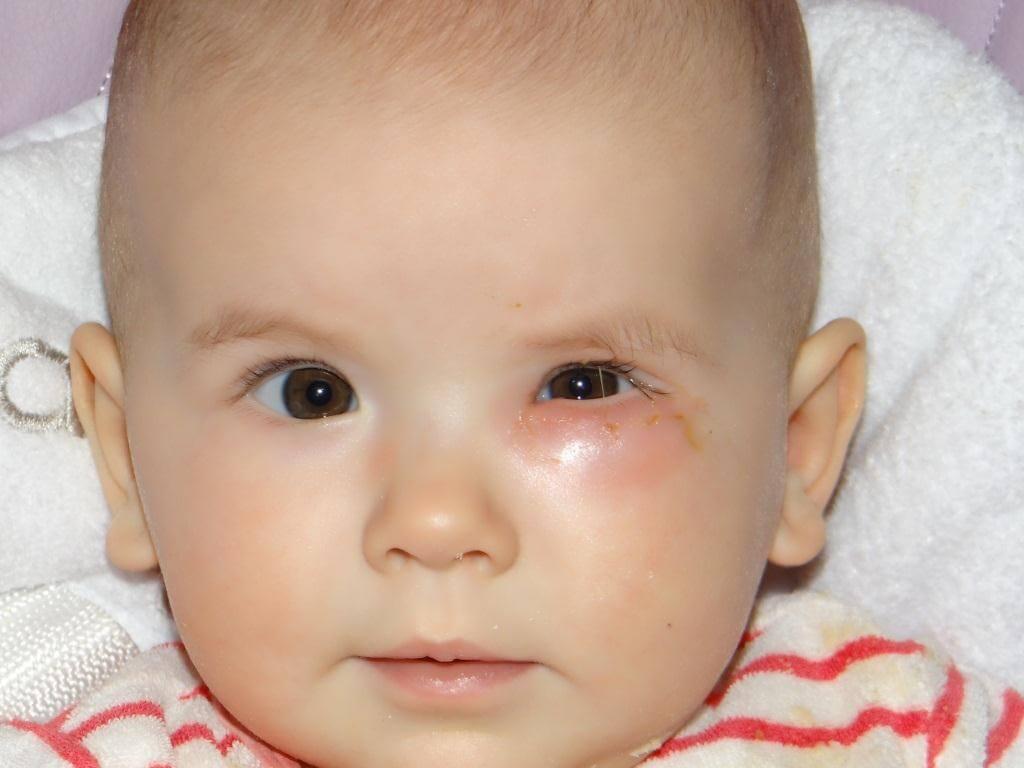 Симптомы закупорки слезного канала у новорожденных