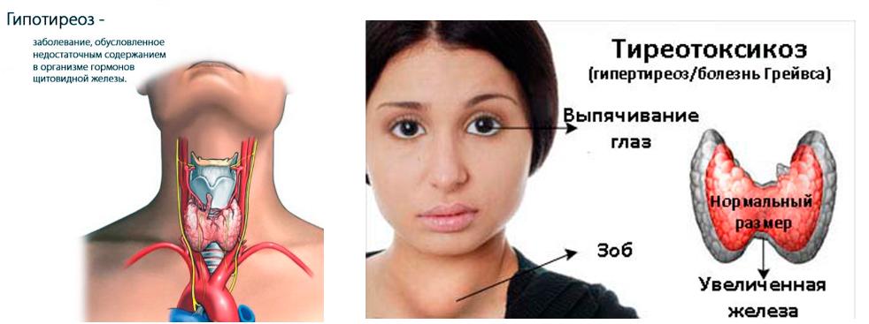 Узловой зоб щитовидной железы - лечение, симптомы