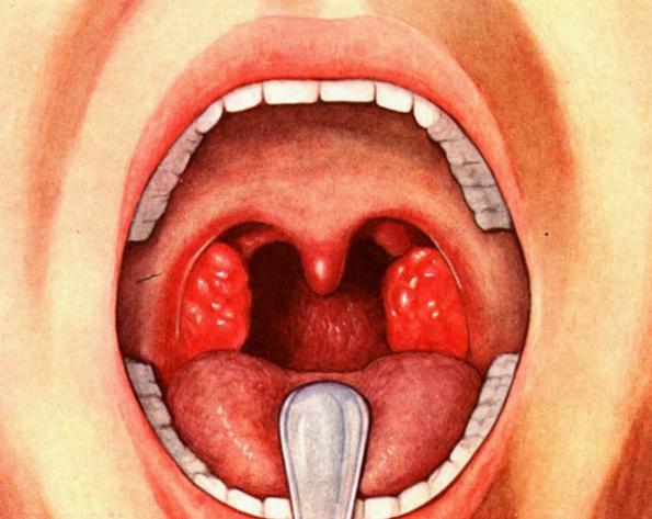 герпесная ангина фото симптомы и лечение