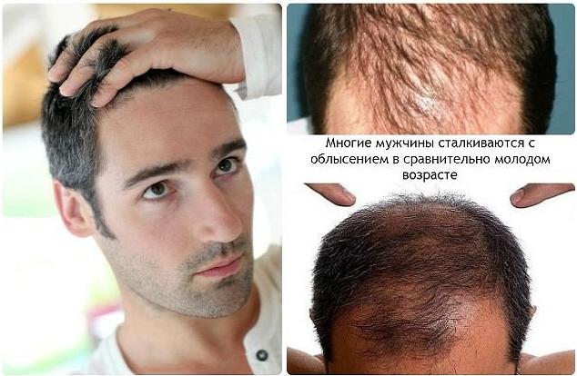 Лечение выпадения волос 91