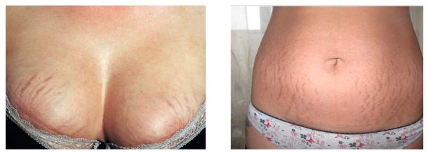 Причины появления растяжек на коже