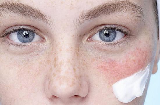 Что делать, если у вас сверхчувствительная кожа?