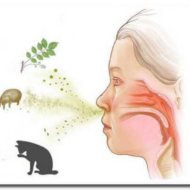 Как лечить аллергический кашель у ребёнка