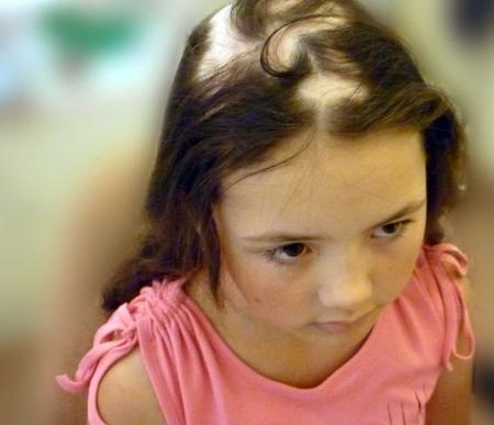 От чего выпадают волосы у ребёнка