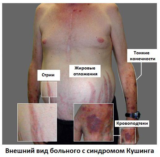 Особенности стрий при синдроме Кушинга
