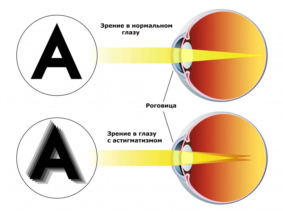 Модная оправа для очков для зрения купить в спб