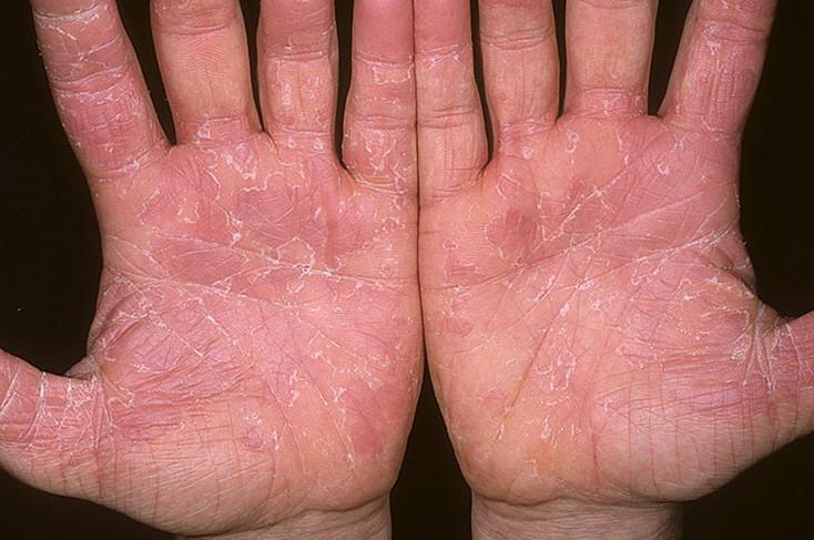 Эксфолиативный дерматит: симптомы и лечение