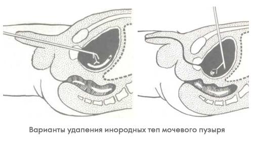 Лечение пациентов при попадании в мочевой пузырь инородных предметов