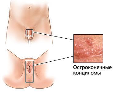 Фото остроконечных кондилом у женщин во влагалище
