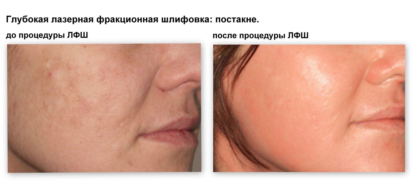 гормональные препараты против аллергии