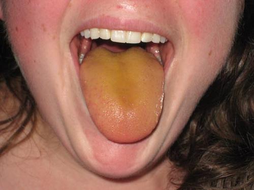 Налет желтого цвета на языке