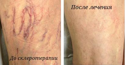 spidervein(1)