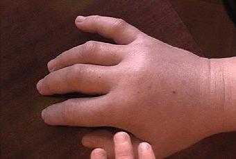 simptomy-allergicheskogo-oteka