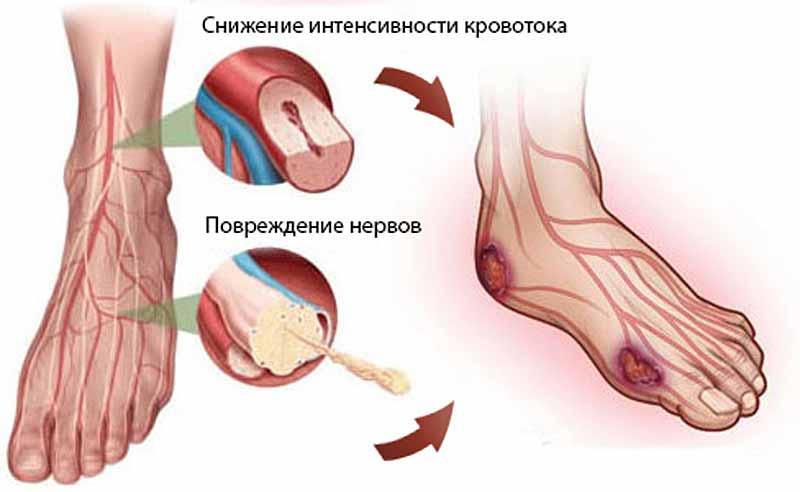 Диабетическая стопа: симптомы и лечение, стадии диабетической ...
