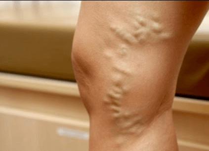 Лазер в лечение варикоза