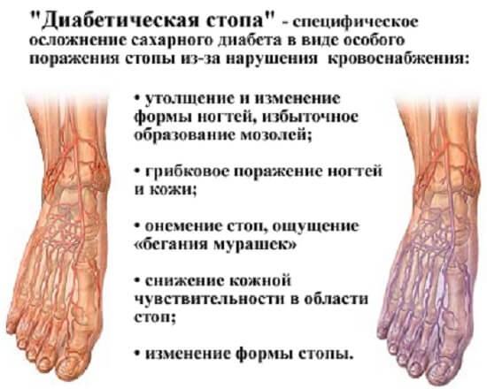 diabeticheskaya-stop