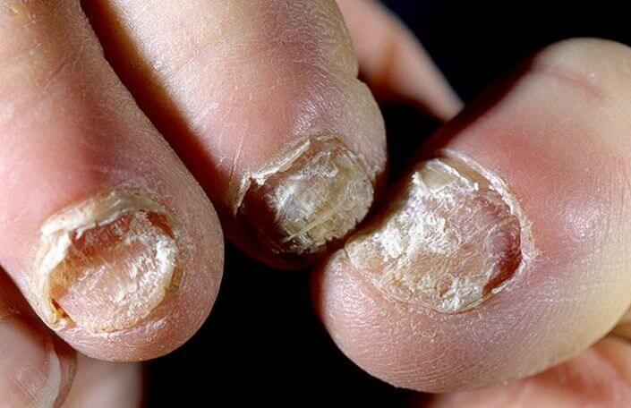 Лак для ногтей для грибка