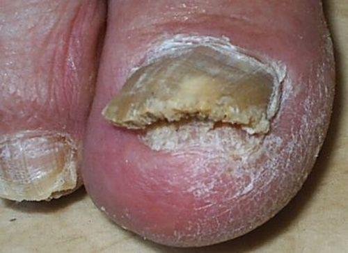 Микозан средство от грибка ногтей