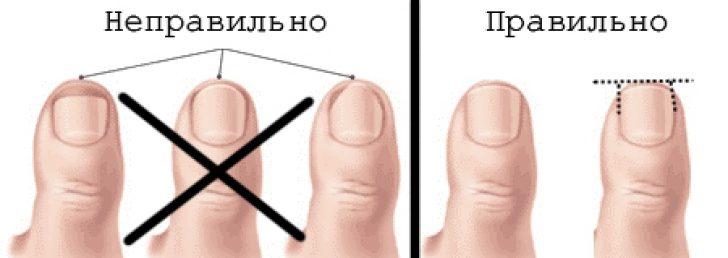 Что нужно делать чтобы не врастали ногти на ногах