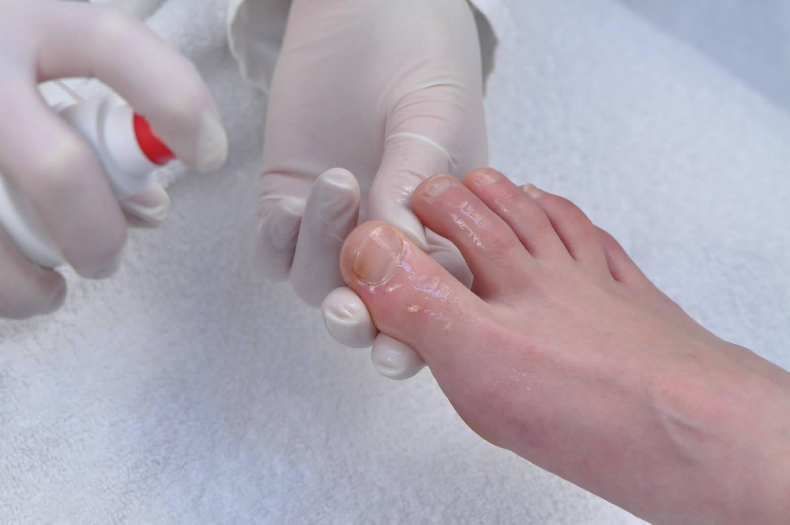 Как удалить ноготь пораженный грибком видео