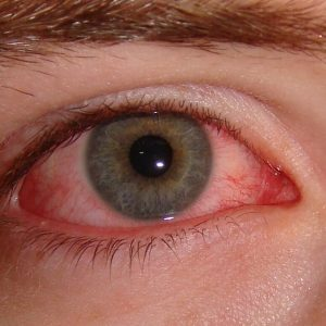 allergia glaza