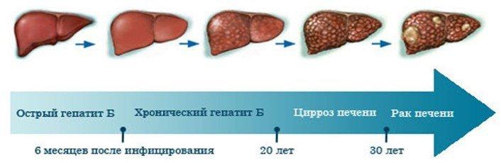 -standarty-lecheniya-cirroza-pecheni-po-polisu-oms