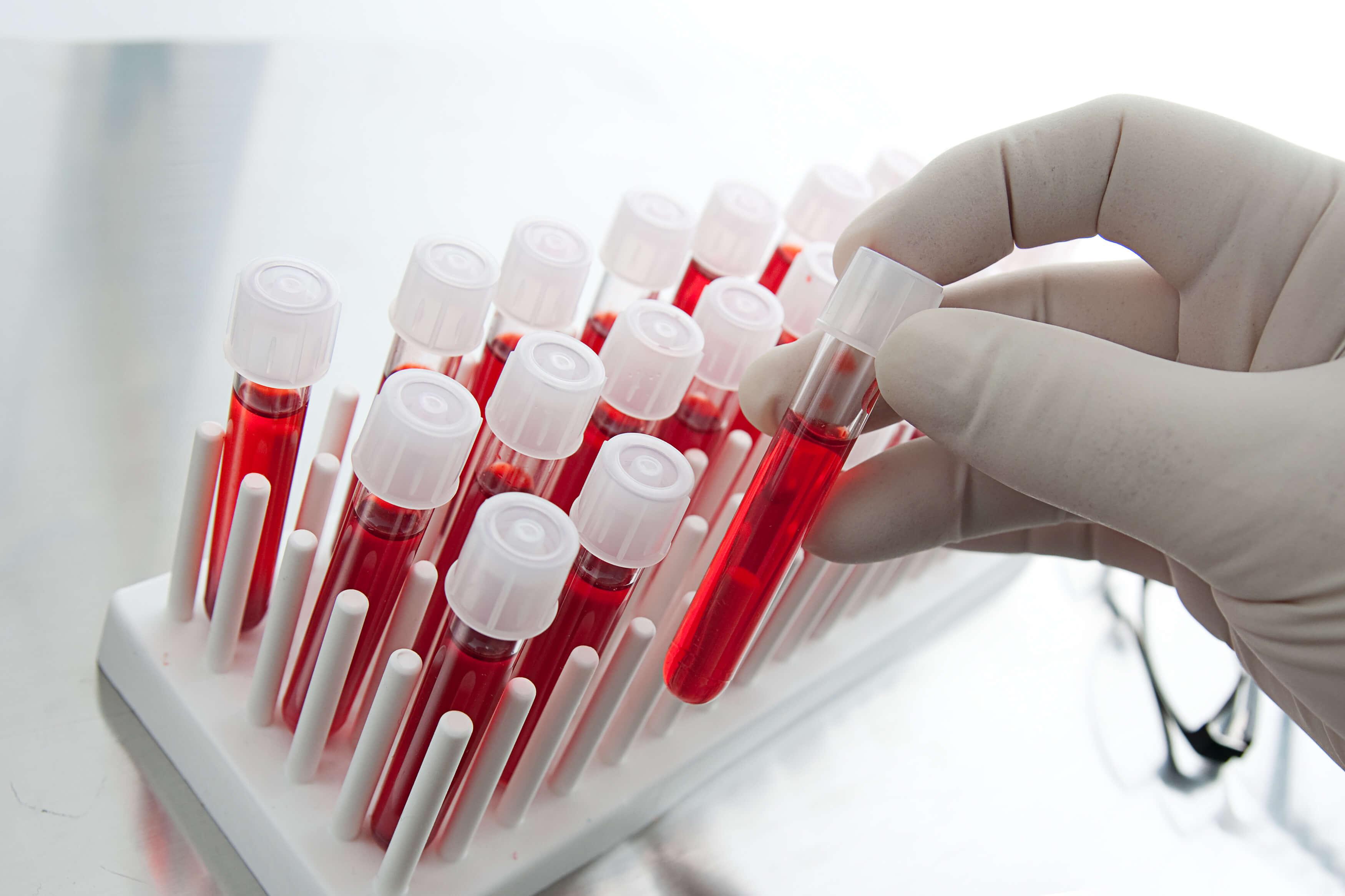 Специалист делает анализ крови на венерологические заболевания