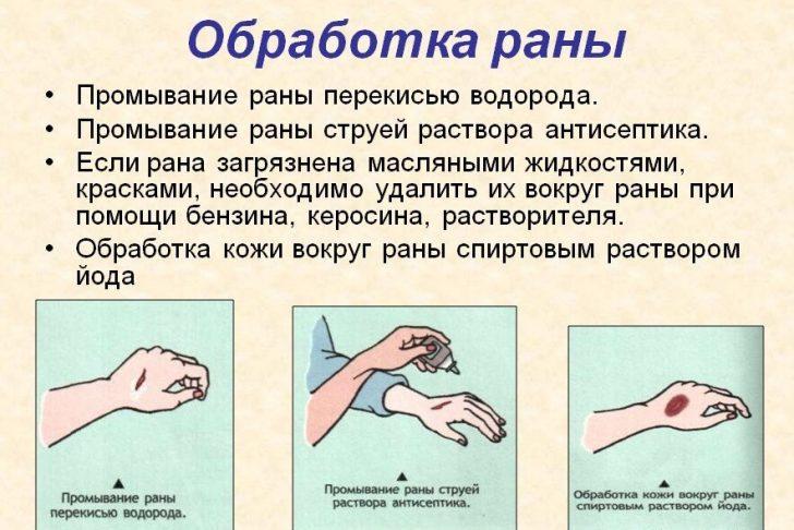 obrabotka_rany