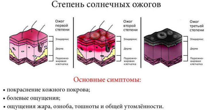 simptomy-solnechnyh-ozhogov