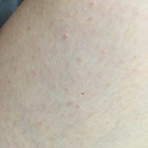 Пупырышки телесного цвета на теле