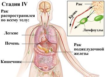 4-стадия рака поджелудка