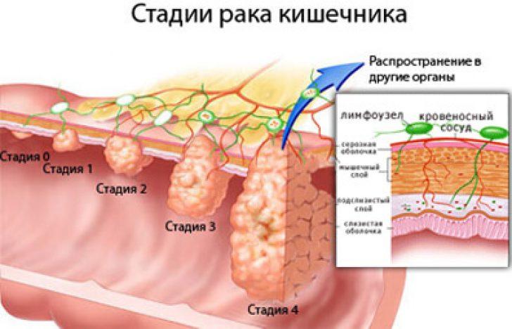 Отзывы рак папиллярный