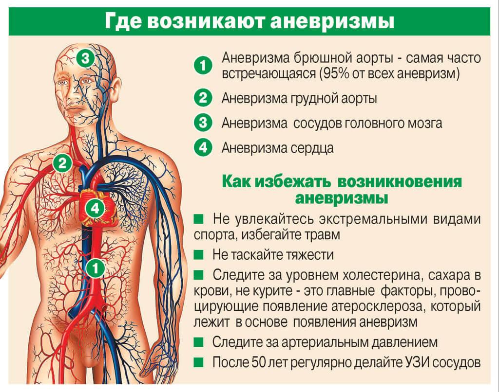 основные симптомы аневризмы головного мозга
