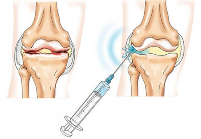 Артроз коленнного сустава лечение бандаж ортопедический на голеностопный сустав orto арт.nan 309